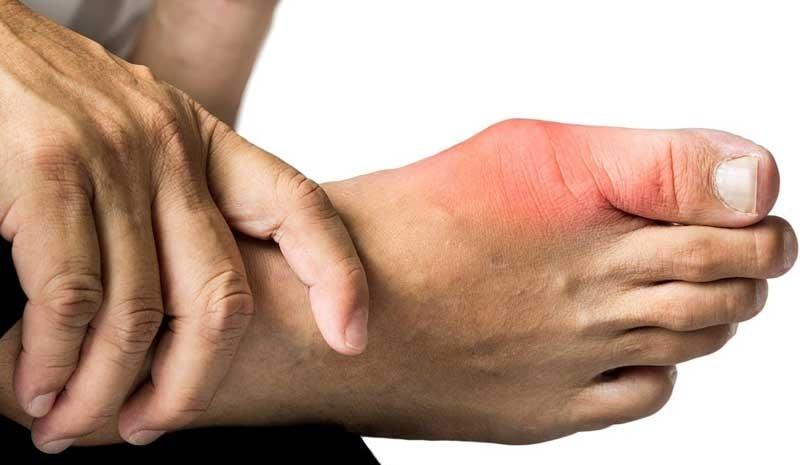 درمان آرتروز و نقرس با مصرف میوه گیلاس