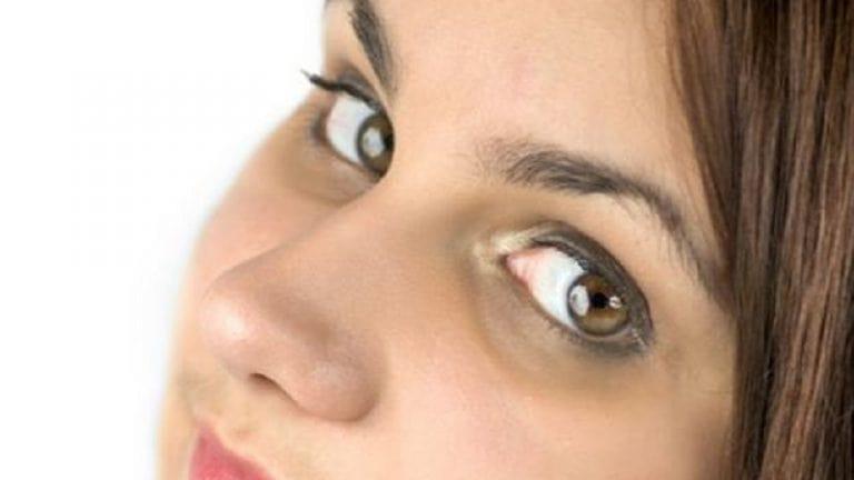 خواص سبزی جعفری برای گودی زیر چشم