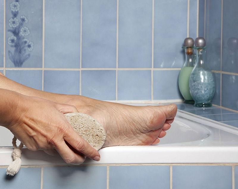 درمان ترک های پا با داروهای خانگی