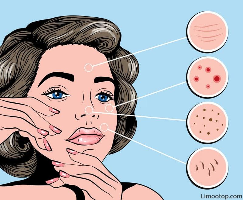 انواع آکنه پوستی