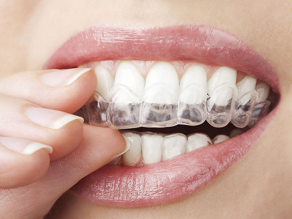 ترمیم مینای دندان