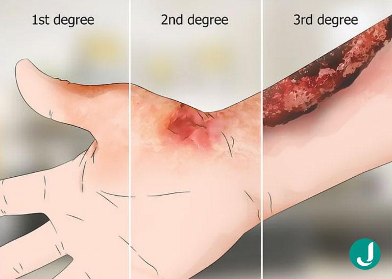 انواع درمان سوختگی شدید