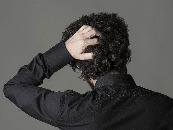 علائم و علت درمان قطعی شوره سر
