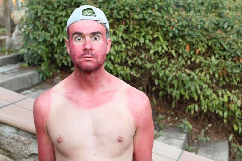 درمان فوری آفتاب سوختگی